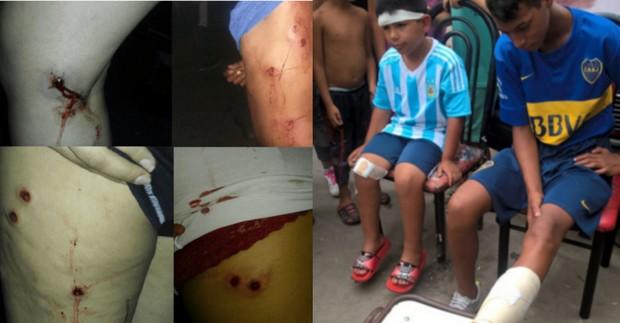Argentina: Polícia reprime crianças e adolescentes por ensaiar para Carnaval