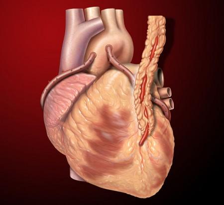 Como as 'dietas malucas' afetam o coração