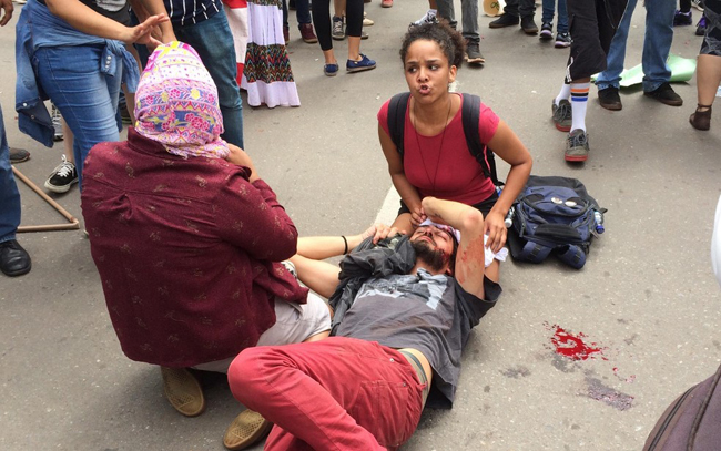 É grave estado de saúde do estudante agredido por policial na greve do dia 28