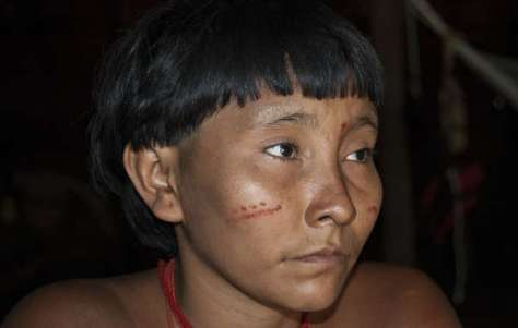 Without medical attention, mercury posioning can be lethal. Children and women of child-bearing age are most vulnerable © Fiona Watson/Survival