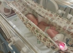 UTI's Neonatal e Pediátrica do Tacchini adotam sistema de recuperação de bebês