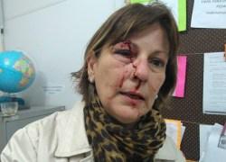 Professora espancada por aluno em SC