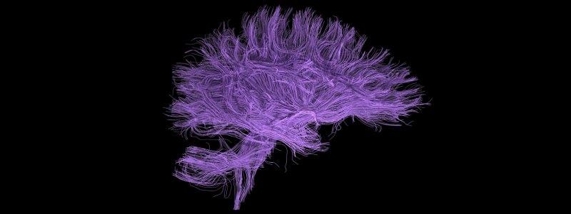 blog.research.mindbrain