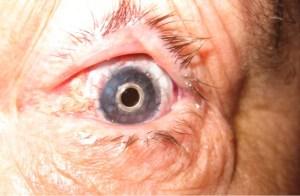 Eye with Boston keratoprosthesis