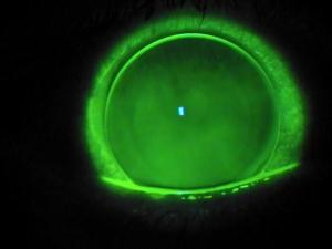 Large diameter corneal gas permeable lens fit with clearance of the cone apex. - contact lens