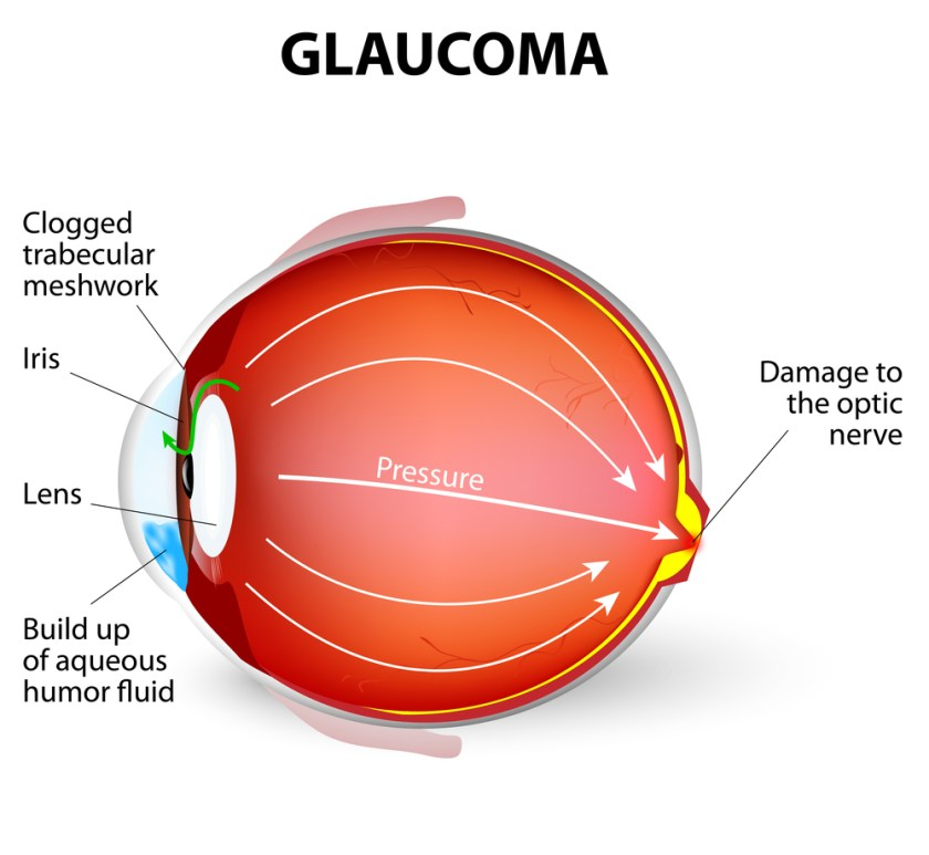 Glaucoma - glaucoma awareness