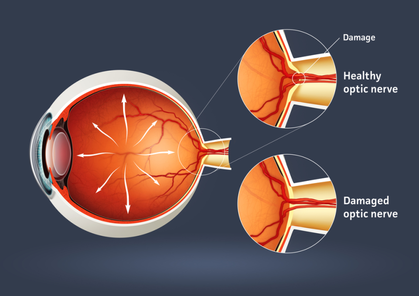 optic nerve - glaucoma awareness