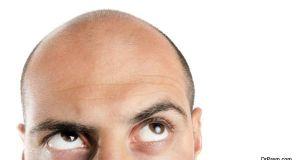 Hair loss (1)