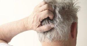 prevent scalp irritation