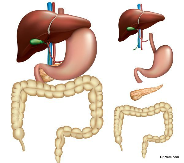 colorectal-cancer-3