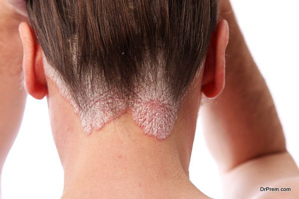 psoriasis on the hairline and on the scalp