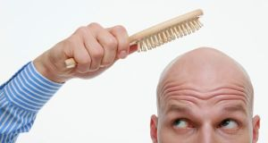 male-hair-loss-3