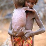 Somalia_Famine_Girl_Carrying_Baby