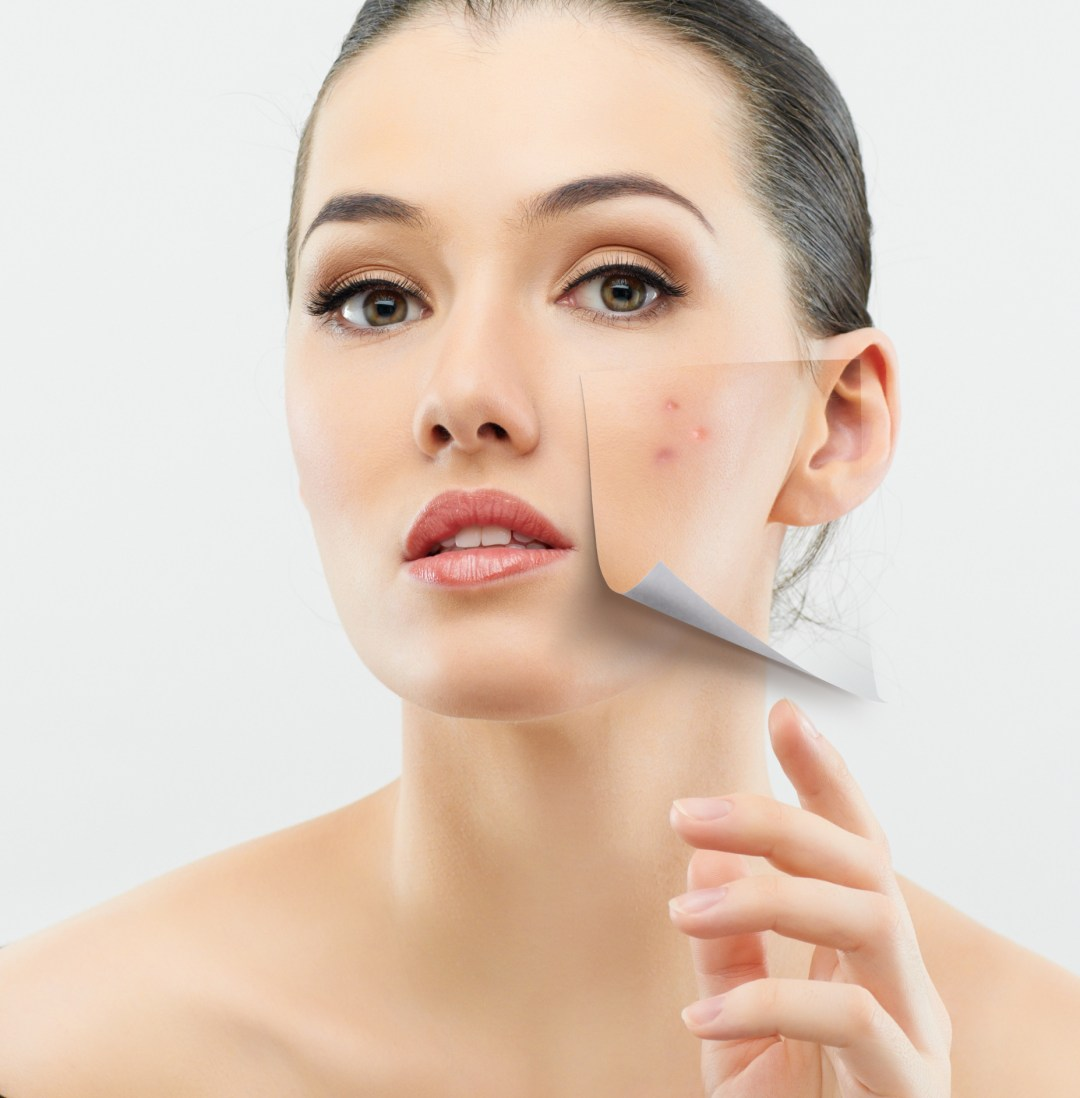 Acne Extraction from Dolev Dermatology San Francisco