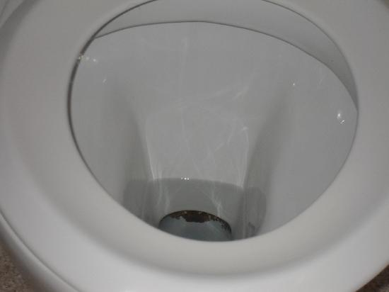 dirty-toilet-bowl