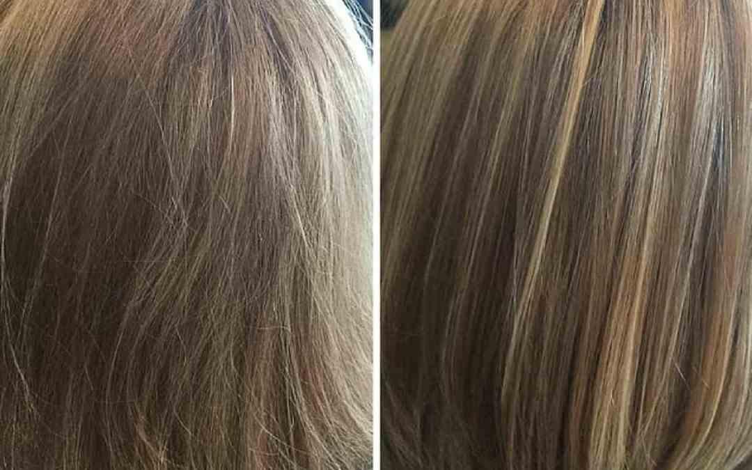 Brand New Evox Hair Rejuvenation Therapy