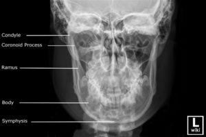 pa-anatomy