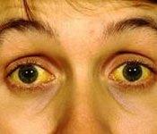 Ojos Amarillos por Dormir Mucho