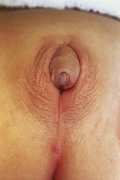 pediatric vagina