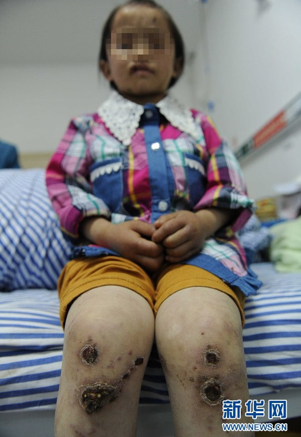china-guizhou-little-girl-abused-by-father-burned-head-boiling-water-a