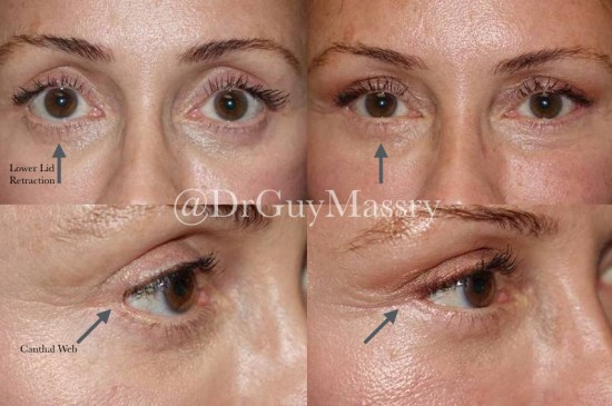 Lower eyelid retraction and canthal web - Dr Massry