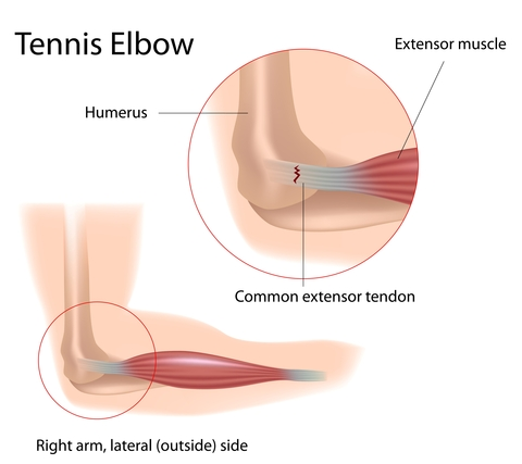 Platelet Rich Plasma (PRP) Effective for Tennis Elbow