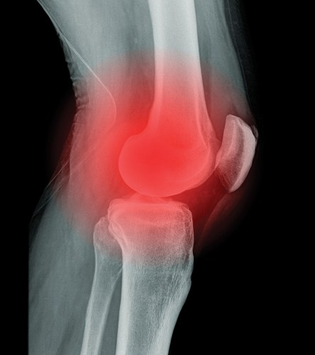 Knee Pain What You Need To Know