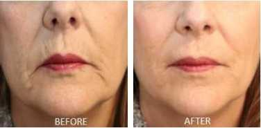 Artefill Bellafill before and after lips and smile lines jowls