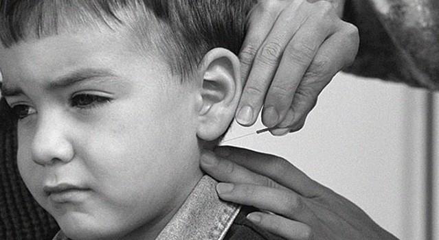 acupuncture-for-children