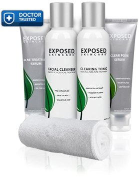 Exposed Acne Treatment Basic Kit