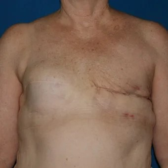 nude beach with mastectomy