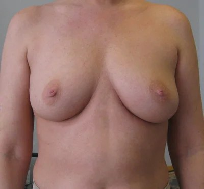 perfect b cup breasts