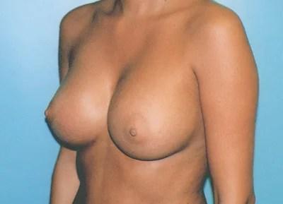 c cup bra off