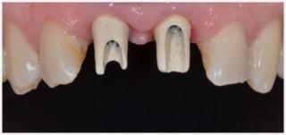 implantes02