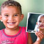 El Jadida : Organisation de l'« Opération Smile » à l'hôpital Mohammed V du 14 au 22 juin 2019
