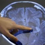 Οι 4 μύθοι για τον εγκέφαλο που διαδίδουν οι εκπαιδευτικοί σε Ελλάδα και σε άλλες χώρες