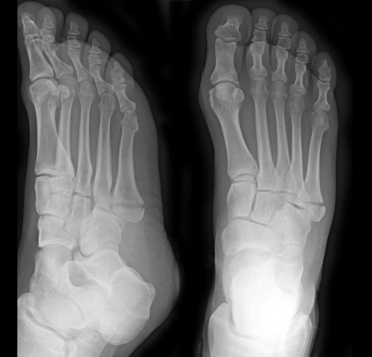 management of ankle fractures australian guidelines