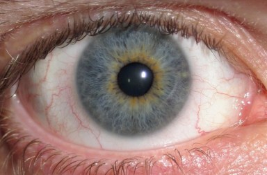 Eye_Central Heterochromia_crop_and_lighter