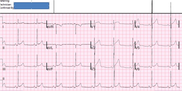An example of false positive ST elevation