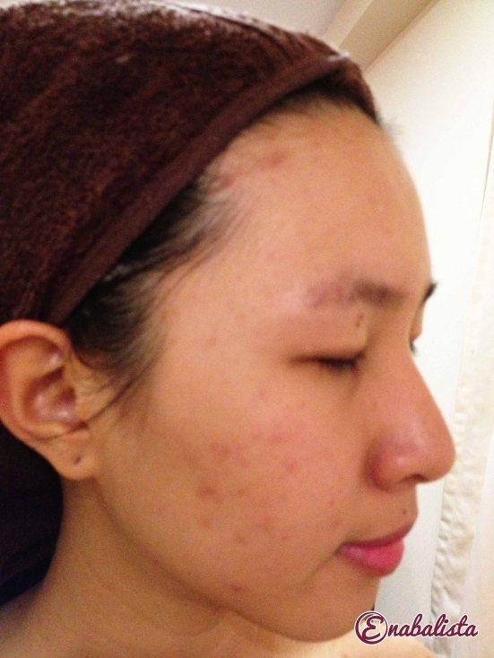 Ena Glomax Facial Review 7