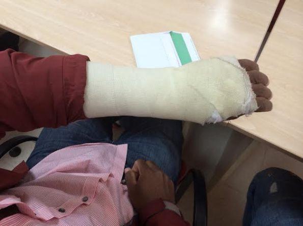 El brazo herido de Doumantaine en la sede de Cruz Roja en Málaga. / S.Rodrigo