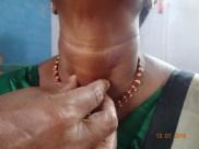 Giving a thyroid exam