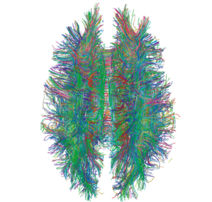 White_Matter_Connections_Obtained_with_MRI_Tractography