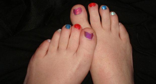 hairless feet