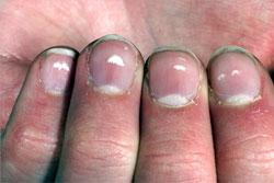 white spot nails