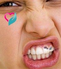 black sports teeth