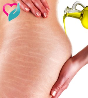 castor oil for stretch mark