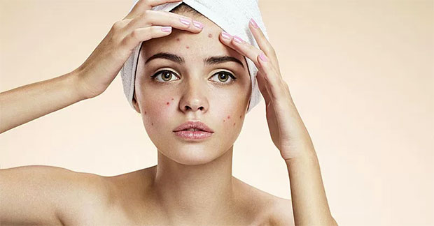 Besan for Pimples
