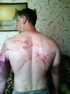 Pastor Sergey after being tortured