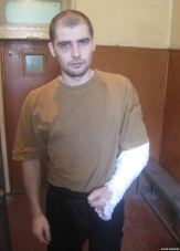 Oleksandr Kostenko's arm was broken. Photo: krymr.com